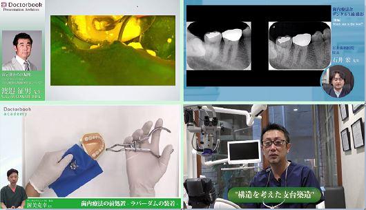 [動画紹介]歯内療法をマスターしよう