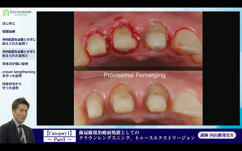 【歯冠修復治療前処置としてのクラウンレングスニング、トゥースエクストリージョン】【前半】次世代の歯科医師に贈る、ジェネラリスト育成講座/内山徹哉先生