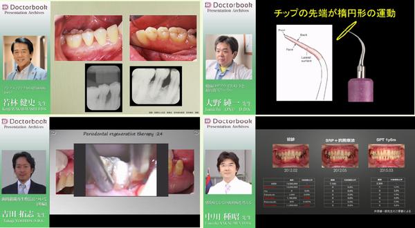 [動画紹介]歯周治療をマスターしよう Part2