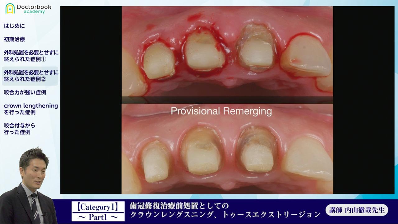 第8回(後編):次世代の歯科医師に贈る、ジェネラリスト育成講座《内山徹哉先生》