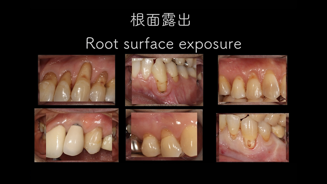 CTG/結合組織移植術とは【歯科用語コラム】