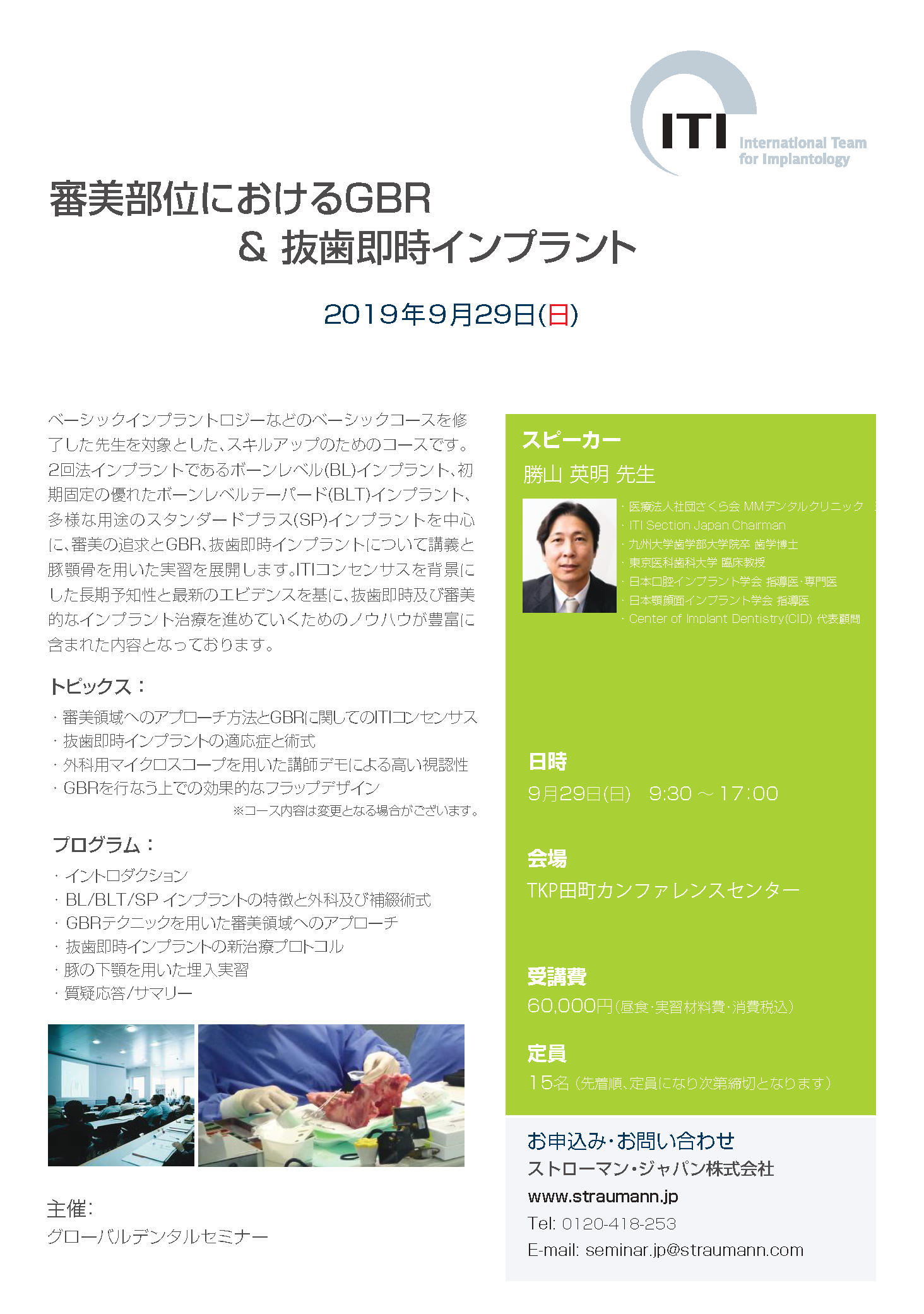【満席】ITI 審美部位におけるGBR & 抜歯即時インプラント