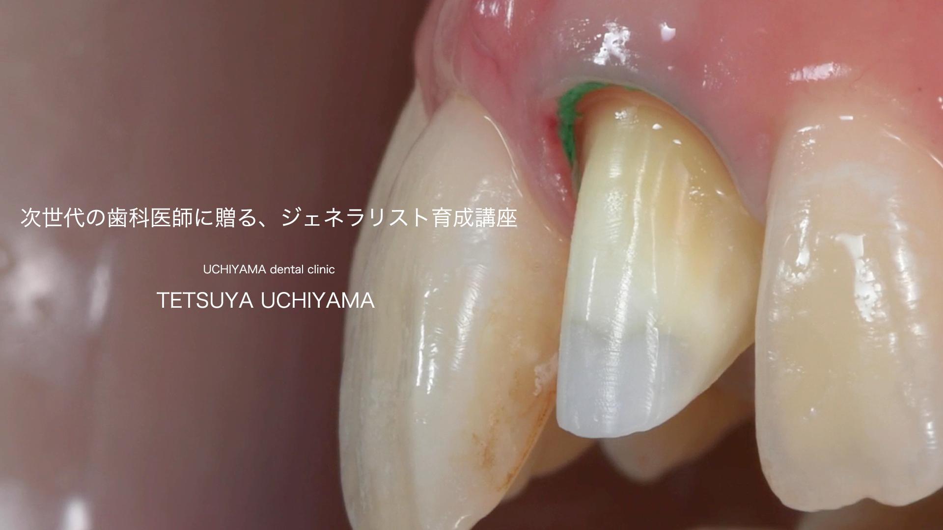 【内山徹哉先生】次世代の歯科医師に贈る、ジェネラリスト育成講座